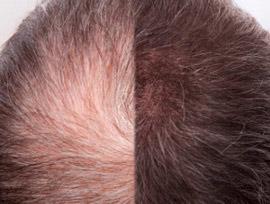Zabieg na wypadanie włosów – Karboksyterapia