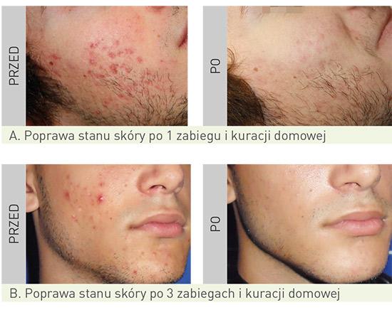 leczenie usuwanie trądziku zdjęcia przed i po